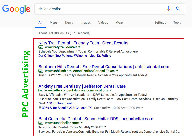 Dallas Dentist PPC Ads